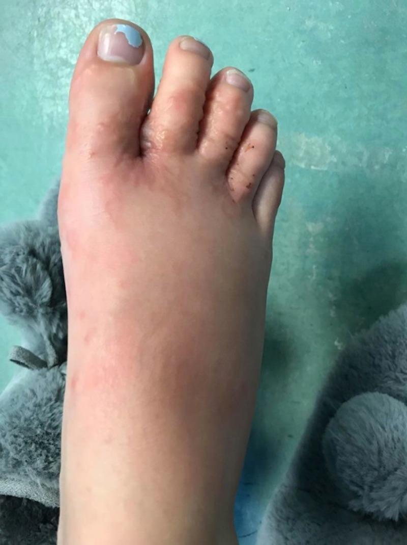 foot2-1517255138307.jpg
