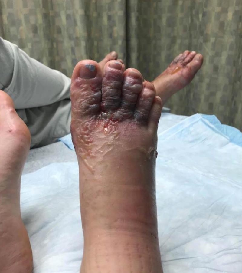 foot6-1517255155886.jpg