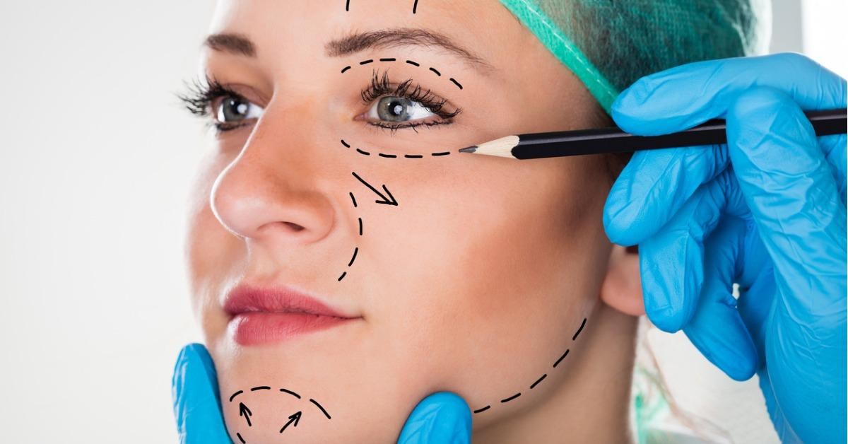 surgeon-drawing-lines-on-womans-face-for-plastic-surgery-picture-id842219902-1540584915866-1540584917727.jpg