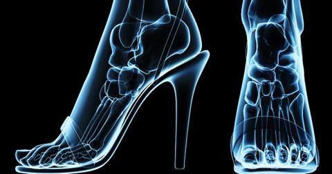 xray-foot-1561408696867.jpg