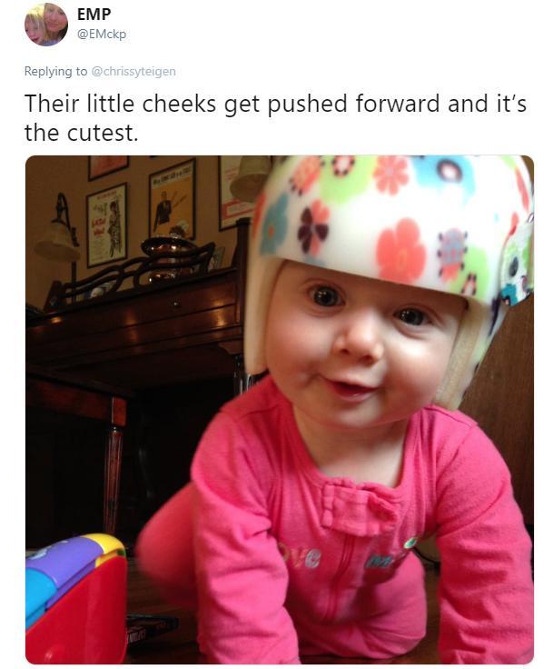 teigen-baby-head-12-1543941404418.jpg