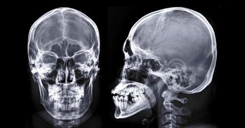1-skull-changes-1560961750151.jpg