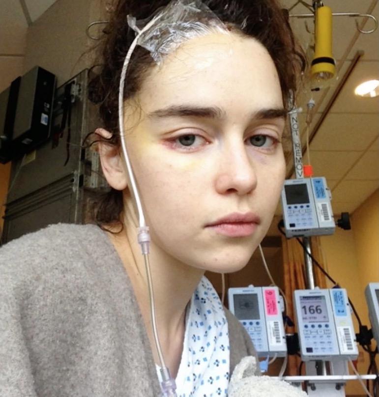 emilia-clarke-brain-surgery-1554827756756.jpg