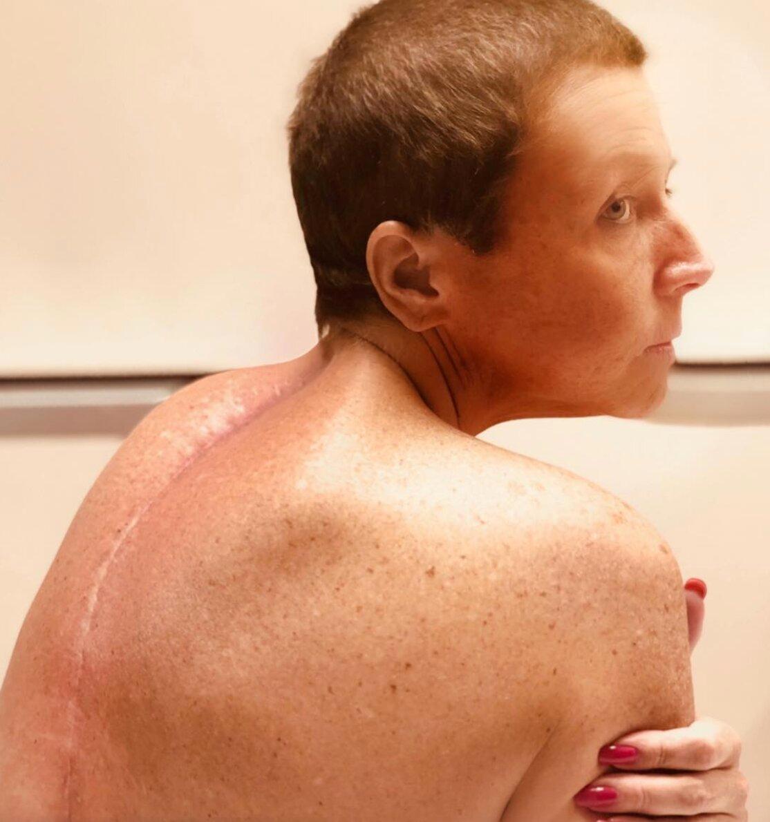 abby-lee-miller-surgery-1555963927926.jpg