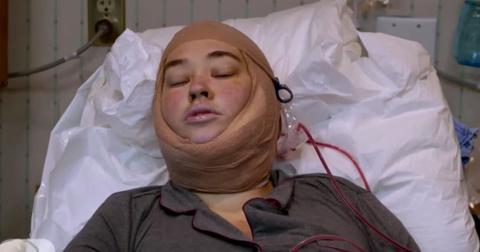 mama-june-neck-surgery-1555692525945.jpg