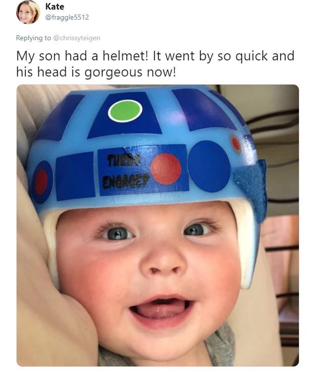 teigen-baby-head-19-1543940508172.jpg