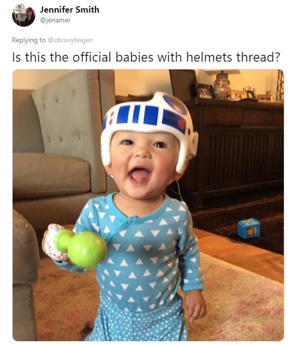 teigen-baby-head-6-1543940641827.jpg