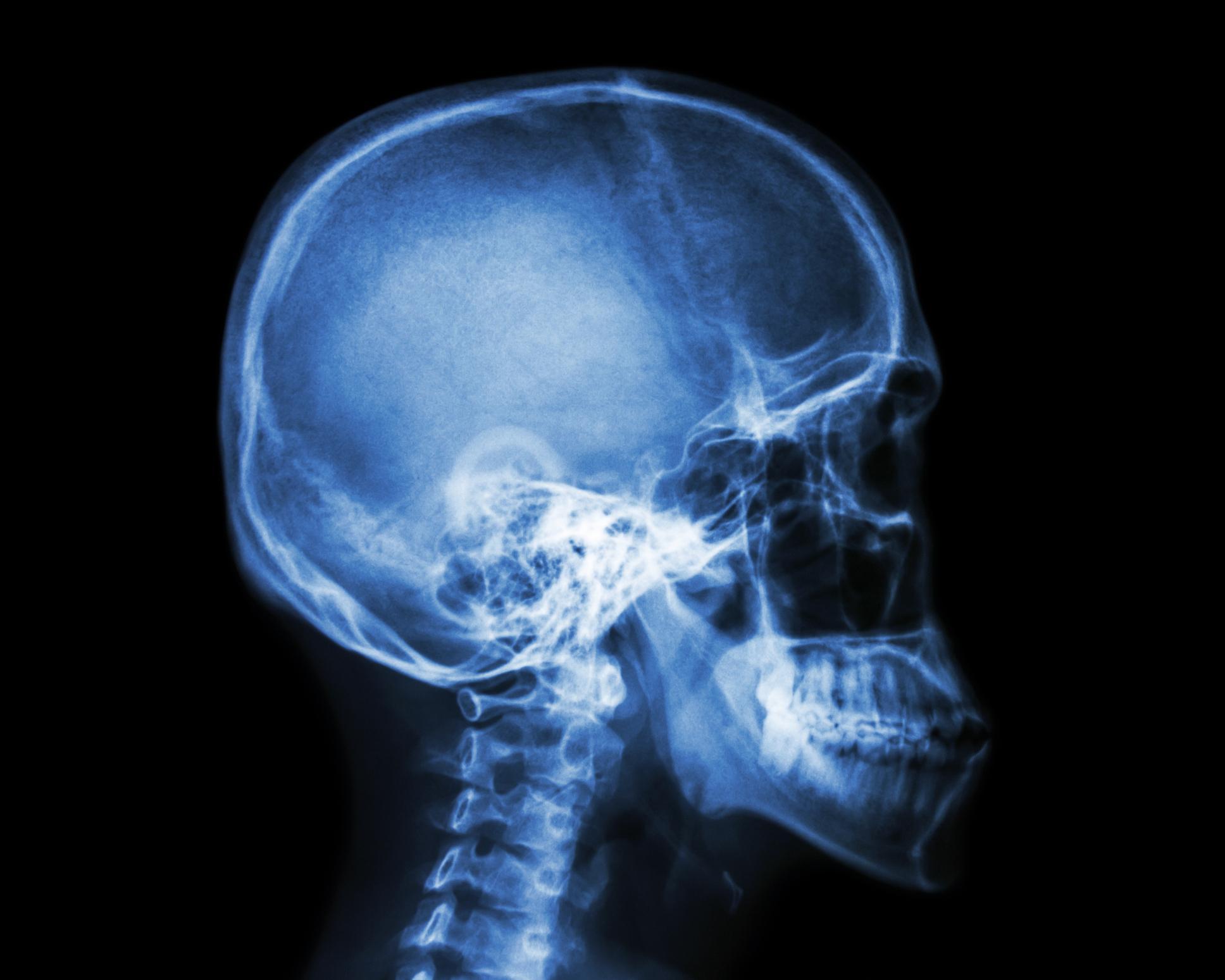 2-skull-changes-1560964565729.jpg