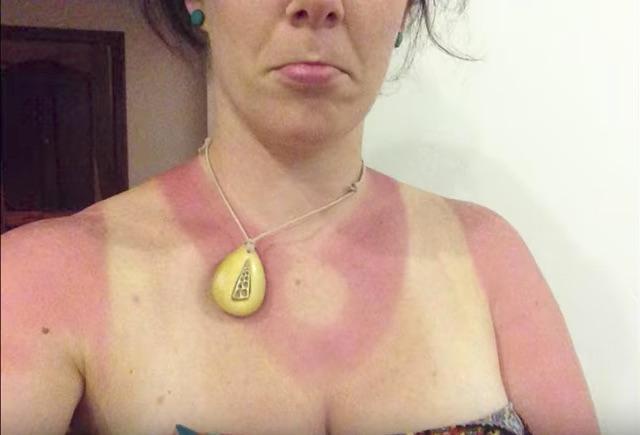 necklace_burn-1494529111042.jpg