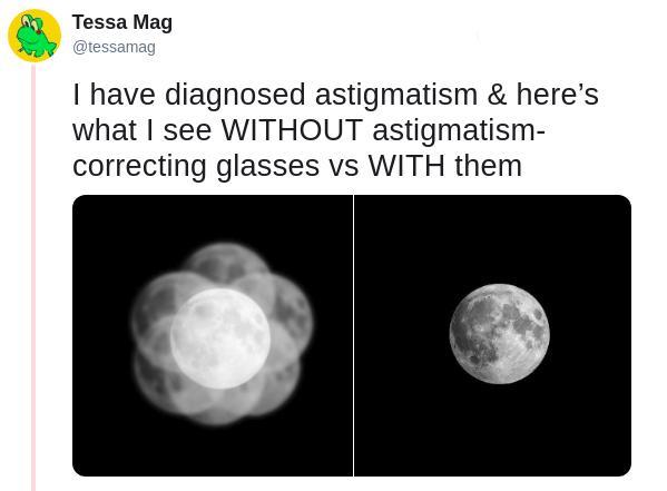 astigmatism-5-1554301601399.jpg