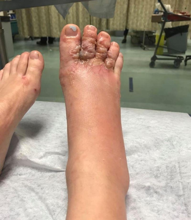 foot3-1517255142909.jpg