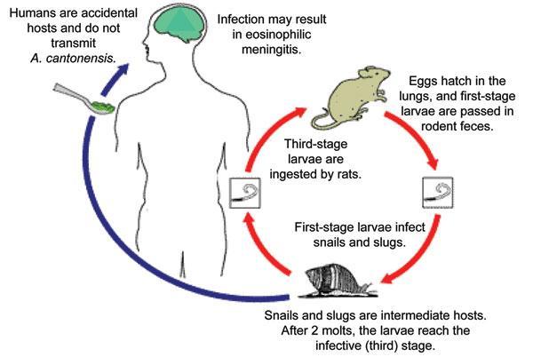 rat-lungworm-cdc-1541523069267-1541523070939.jpg