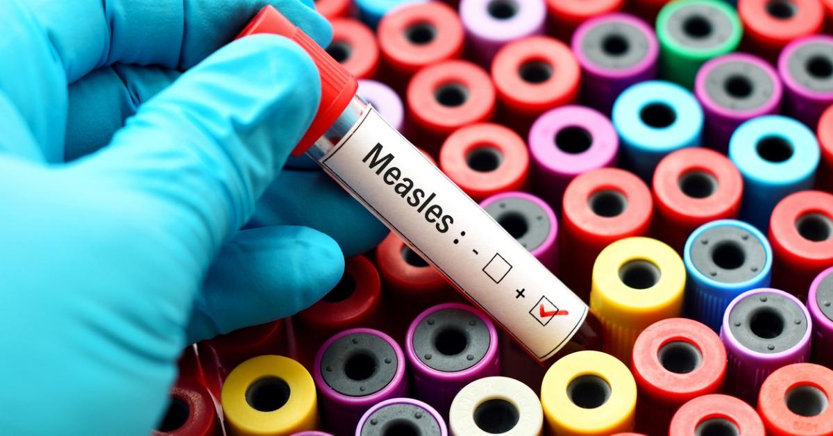 measles-positive-picture-id689072752-1535569639733-1535569641767.jpg
