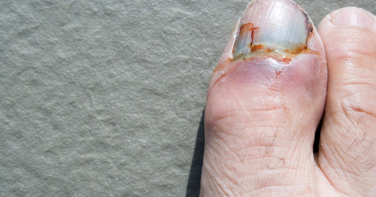 ouch-a-bloody-sore-stubbed-toe-picture-id97599792-1540404094231-1540404096981.jpg
